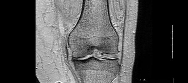 Investigacion artrosis
