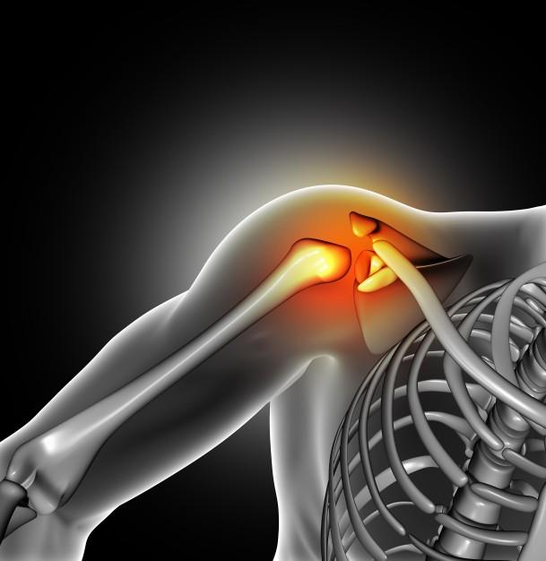 Dolor de hombro: causas y síntomas - Clínica Gaias